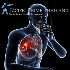 Smoking and Lung Cancer in Thailand